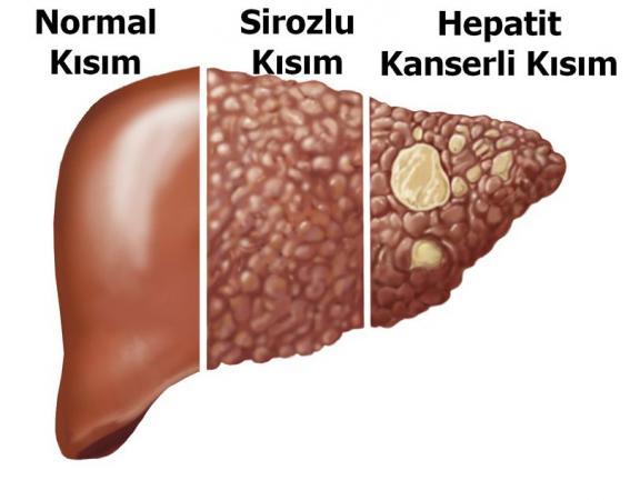 Karaciğer-hepatit-siroz