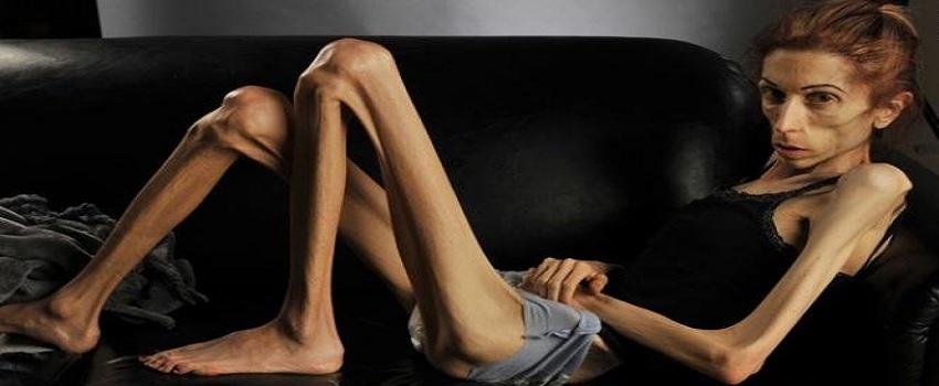 Anoreksiya Nedir?